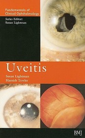 Uveitis: Fco Series (Fundamentals Of Clinical Opthalmology)