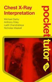 Chest X Ray Interpretation Pocket Tutor