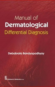 Manual Of Dermatologic Differential Diagnosis