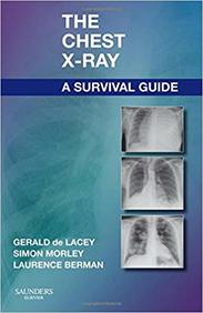 Chest X-Ray A Survival Guide