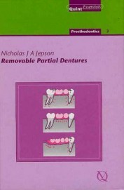 Removable Partial Dentures : 18 Prosthodontics