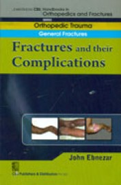 General Fractures Fractures & Their Complications
