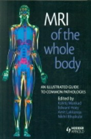 Mri Of The Whole Body:An Illustrated Guide To Common Pathologies