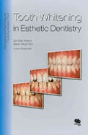 Tooth Whitening In Esthetic Dentistry 2 Books