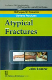 General Fractures A Typical Fractures