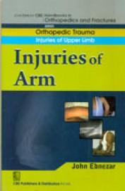 Injuries Of Arm