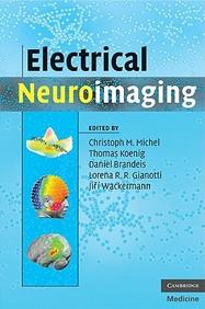 Electrical Neuroimaging